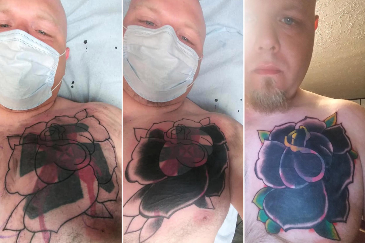 Former white supremacist gets swastika tattoo covered up