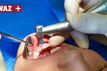 Chalk teeth in children: NRW is the sad leader
