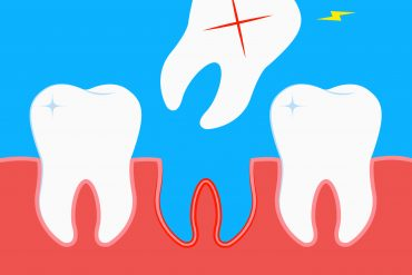 Cognitive decline and dementia due to tooth loss - treatment exercises